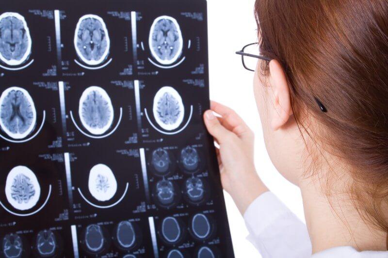 Brain injury results
